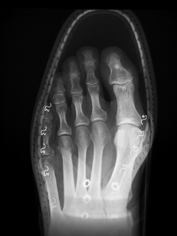 Pointy Shoes Xray